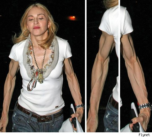 madonna ugly arms 