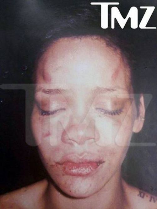 rihanna pictures after beating. punishment for BEATING THE